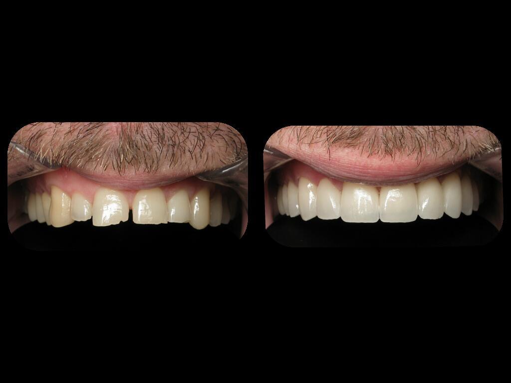 Dental Lab Franklin Lakes NJ